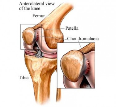 chondromalacia-of-the-patella-375x346
